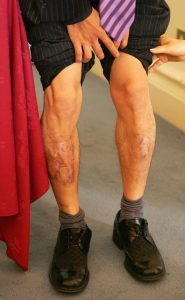 Le gambe ustionate di Shin